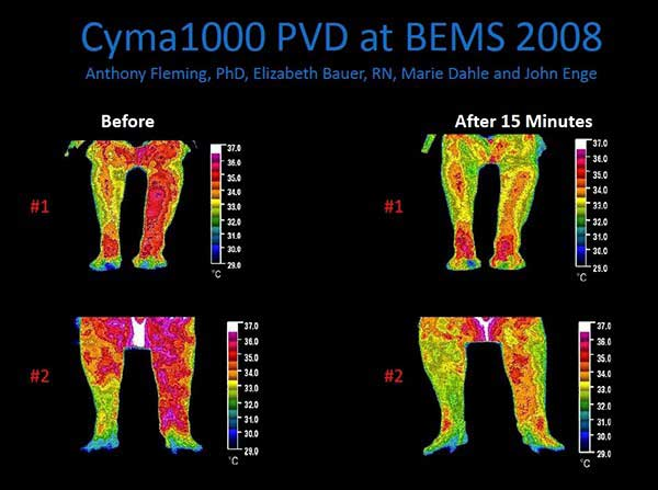 Cymatherapy Inflammation Decrease in Legs