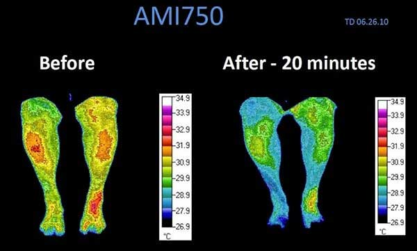 Cymatherapy Decreases Inflammation in Legs